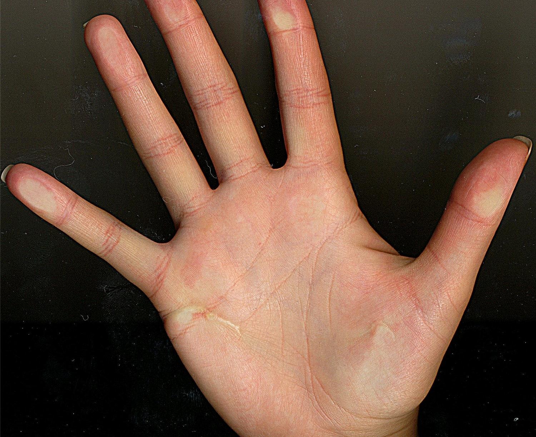 О чем расскажет линия любви на руке или ее отсутствие